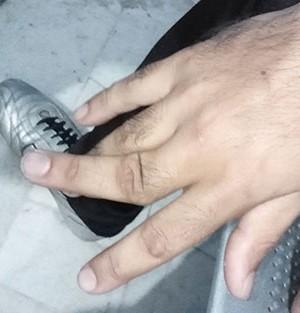 مرا برای دررفتگی انگشت دست به بیمارستان فرستادهاند